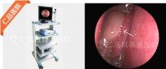 低温等离子微手术—肥厚性鼻炎治疗