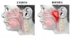 医生解析:2种治疗腺样体肥大的方法