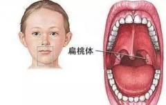 【一问医答】儿童腺样体肥大能保守治疗吗?需不需要手术?