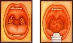 腺样体肥大的病因有哪些