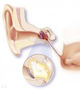 儿童中耳炎的早期症状
